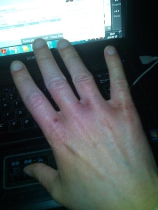 EGZEMA HANDS